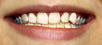 Отбеливание зубов при курении
